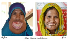 Adiati, before and after surgery.